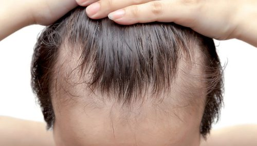 A Hair Loss Solution For Steady Balding