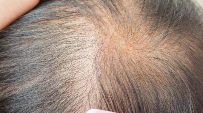 Hair Loss – Some Causes And Treatments For Women