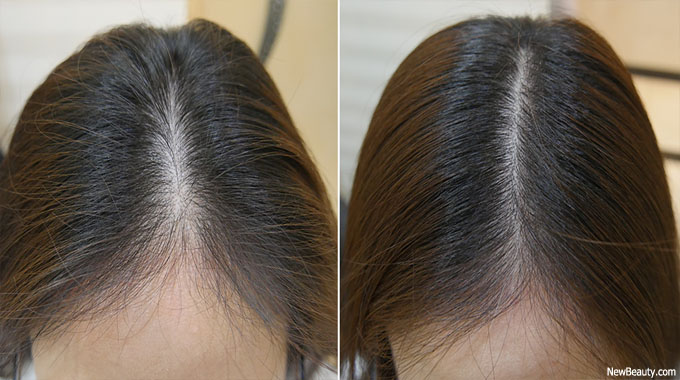 hair loss remedy for females – Concerns and Remedies